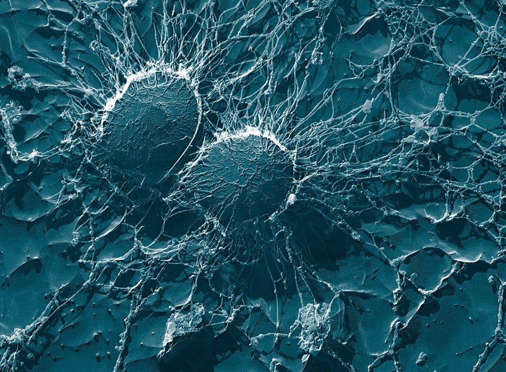 Staphylococcus_aureus,_50,000x,_USDA,_ARS,_EMU.jpg