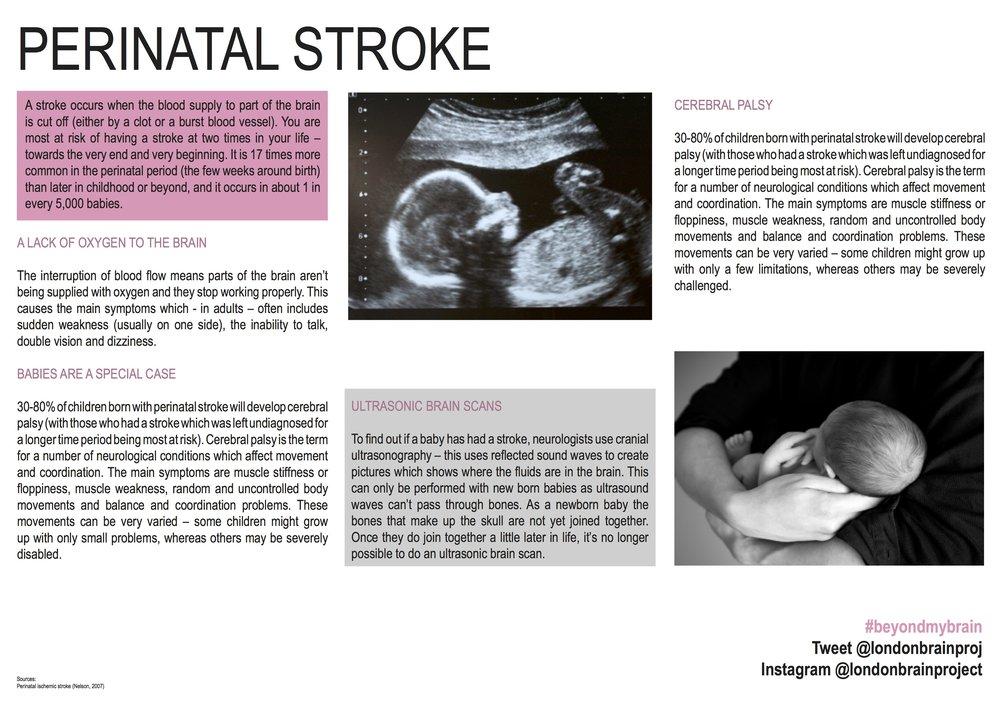 Perinatal Stroke.jpg