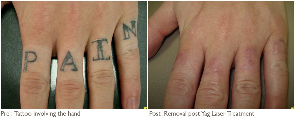 Laser Tattoo Removal Pictures After Each Treatment Tattoo And Scar