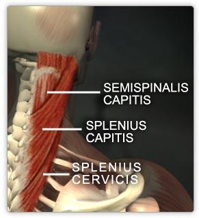 splenius1.jpg
