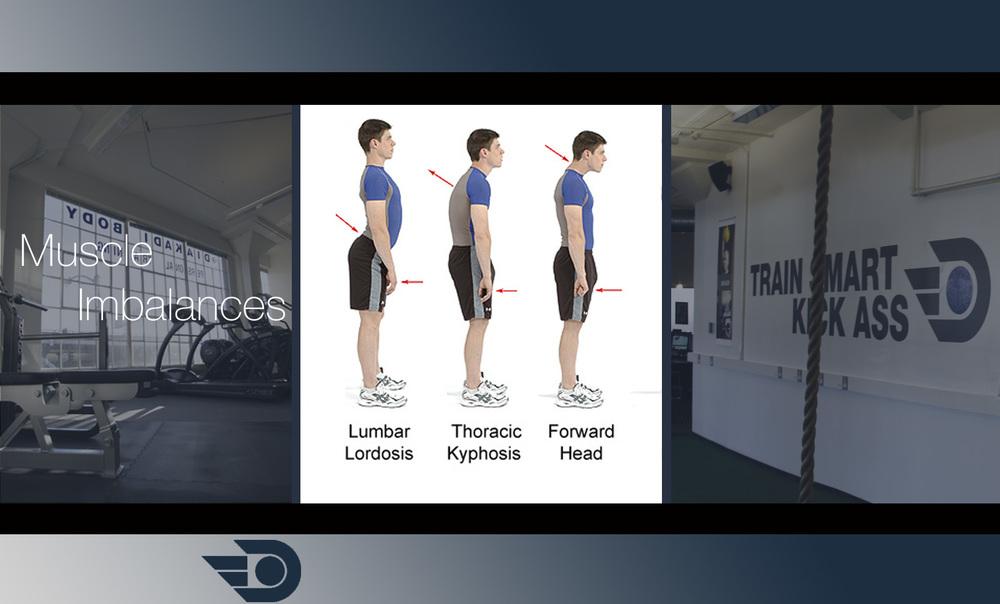 Muscle-Imbalances-post2.jpg