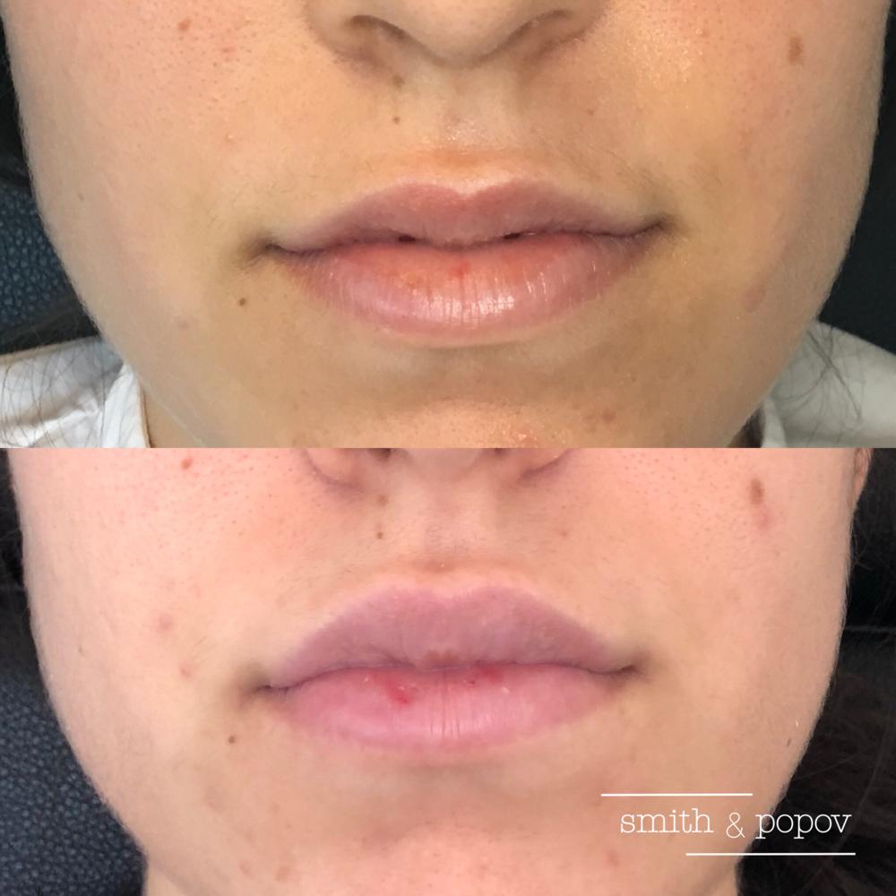 Lip enhancement with Juvéderm dermal Filler. #lipfillers