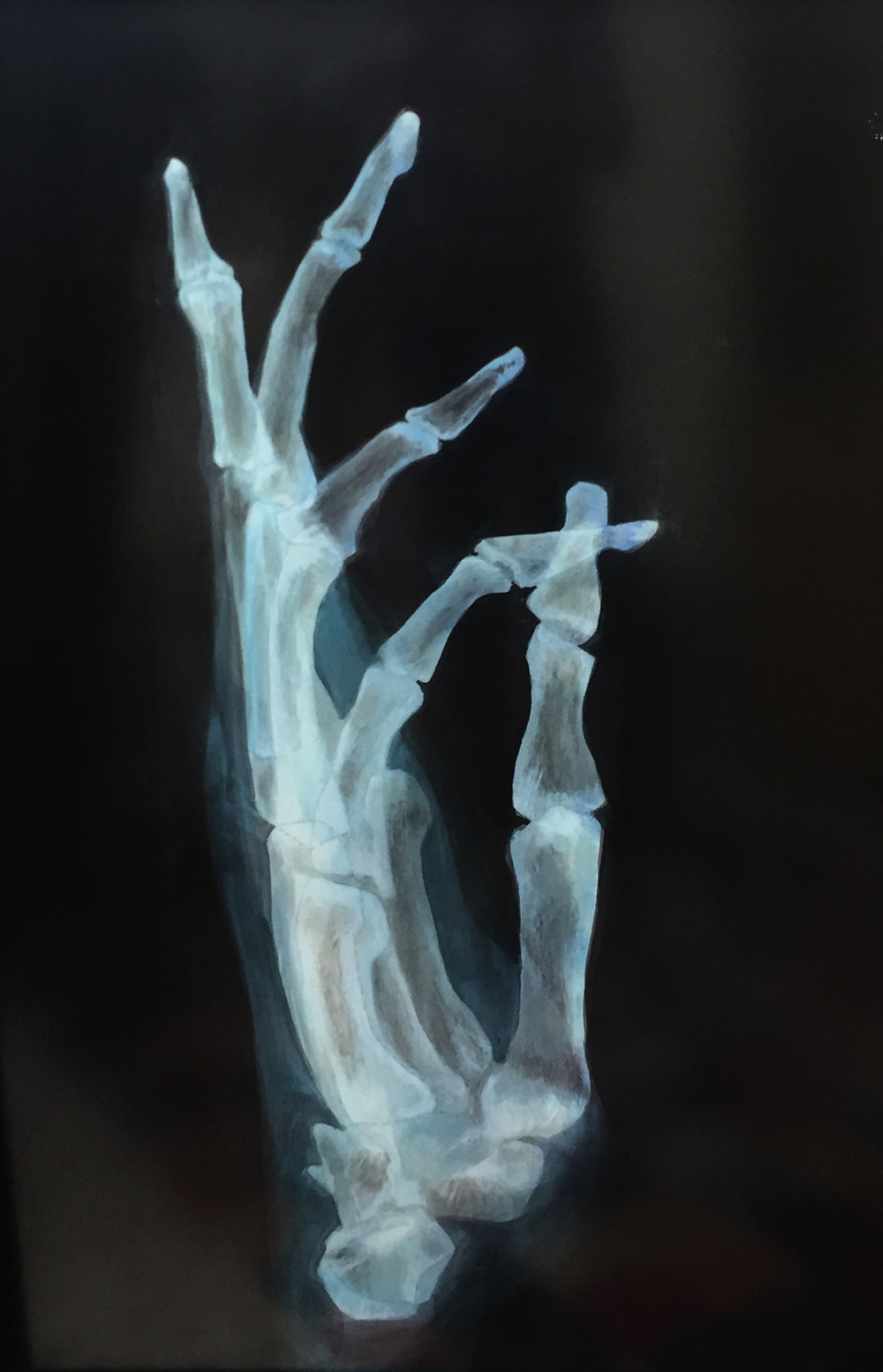 Ed Aulerich-Sugai , Xray  series, 1980. Acrylic. 45 x 30 inches.