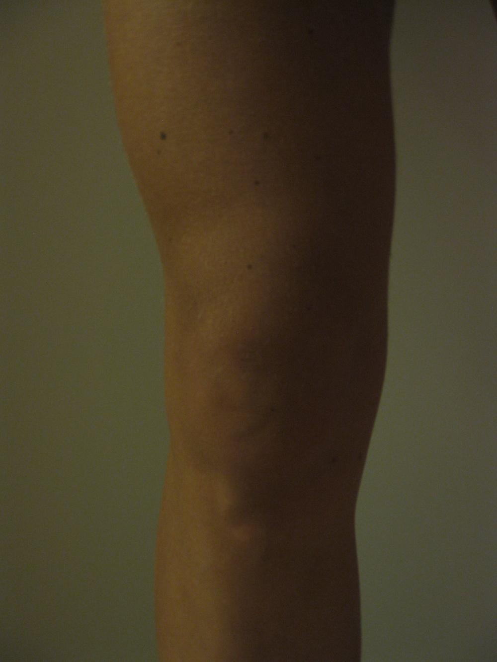 Den rådende oppfatningen om smerte er 400 år gammel og utdatert.  Tverrfaglighet kan være løsningen . forskerlivet.no