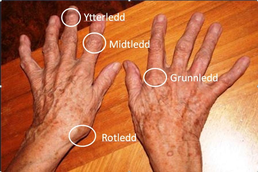 vondt i hendene