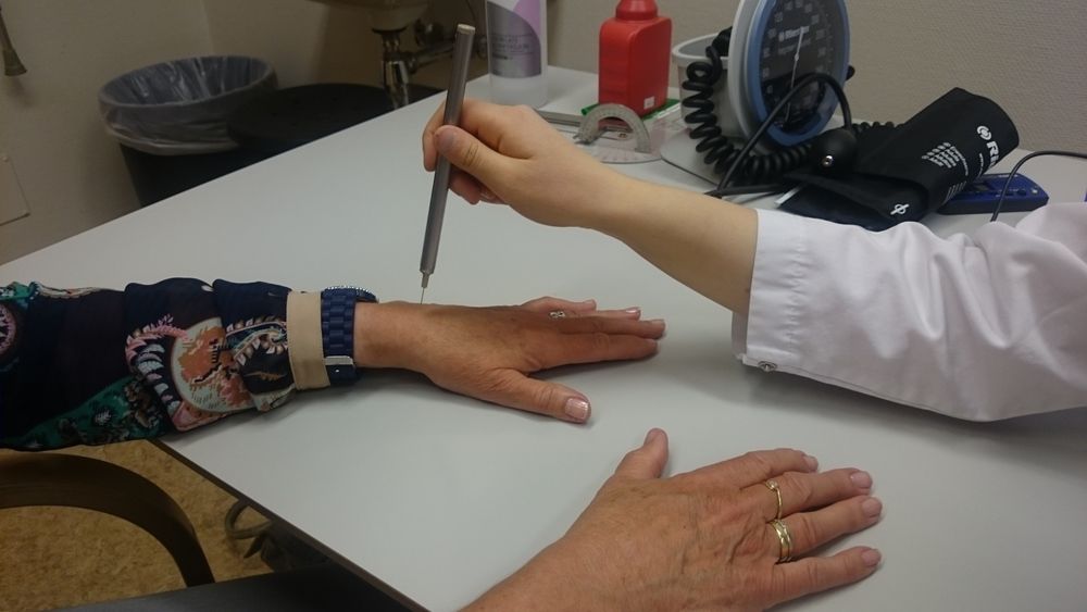 En av følsomhet- og smertetestene i Nor-Hand,som vil lære oss mye om smertemekanismer ved artrose.www.forskerlivet.no