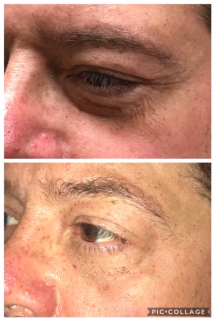 8 days post procedure (top- before, bottom- after)