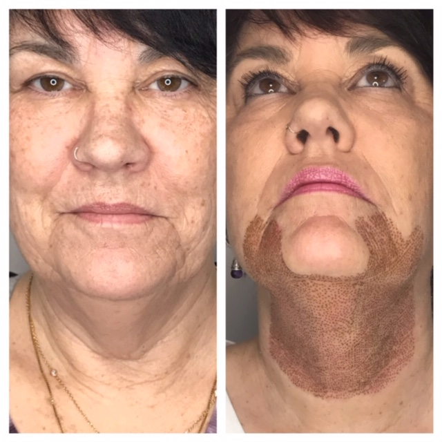 neck lift (left- before, right immediately after)
