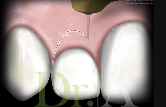 Cirugía estética de encías para hacer ver mas grandes los dientes, sin anestesia.