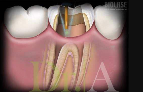 Desinfección de los conductos radiculares en tratamientos de endodoncia.