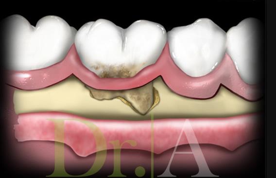 Terapia periodontal a campo abierto