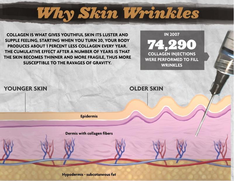 Why skin wrinkles