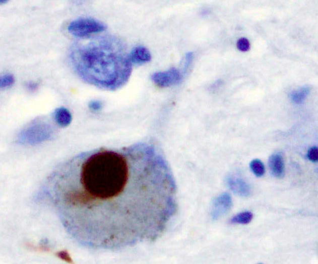 A Lewy body (stained brown) in Parkinson's disease.  Via Wikimedia Commons