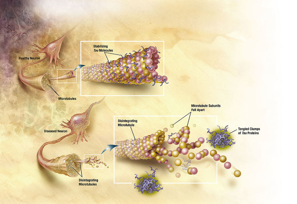 Tau is also implicated in Alzheimer's progression. Changes involving tau proteins lead to the disintegration of microtubules in brain cells.