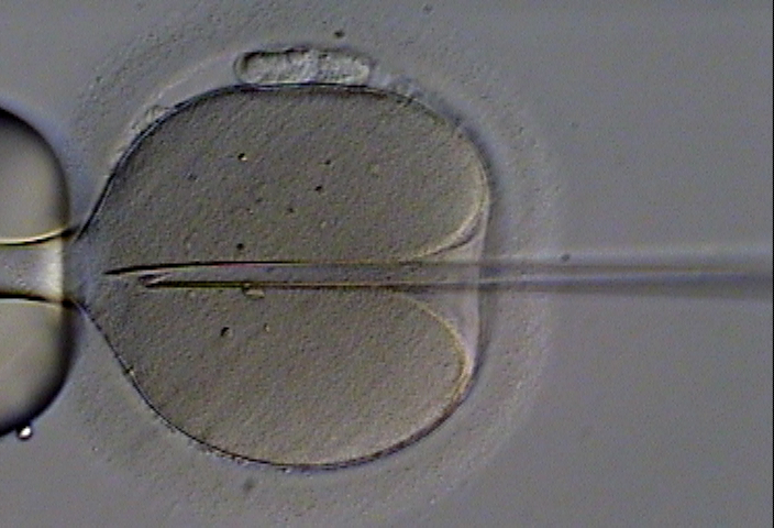IVF is pricy and often ineffective