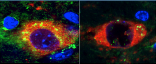 Dysfunctional lysosomes outside the nucleus in a mouse model of Parkinson's (left) You can see a dramatic reduction of these dysfunctional organelles following treatment with rapamycin (right)   Credit: Almas Siddiqui, Buck Institute