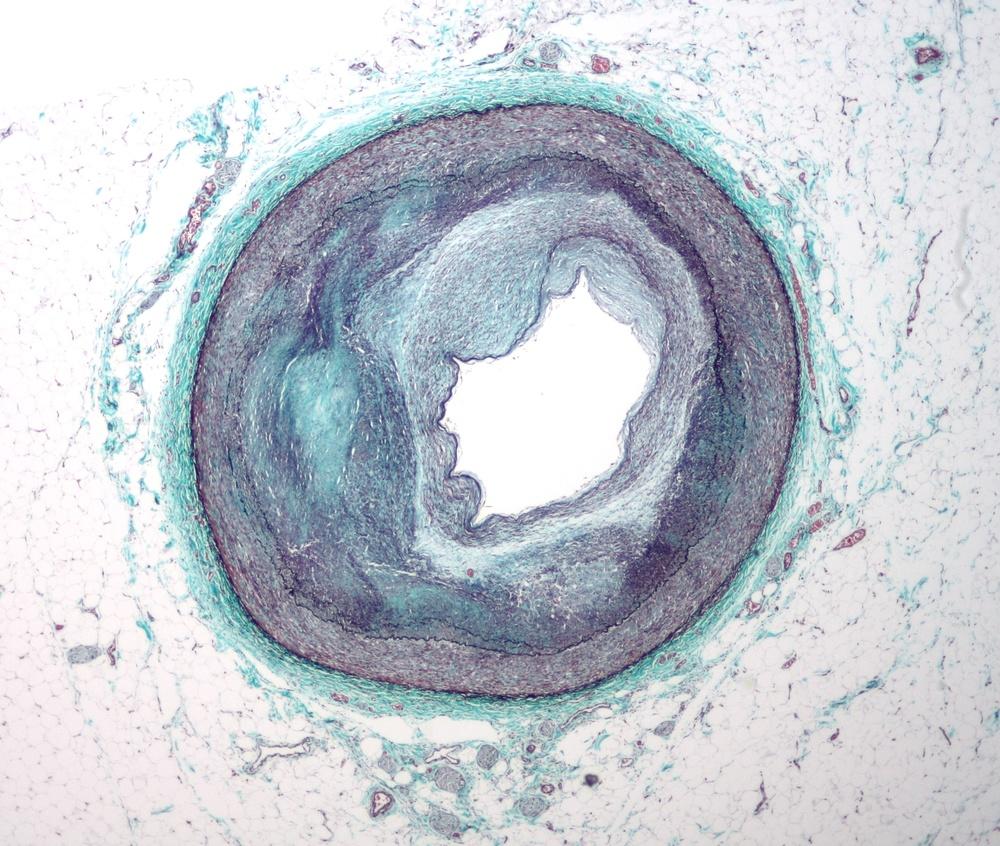 Atherosclerosis in a coronary artery, Wikimedia Commons