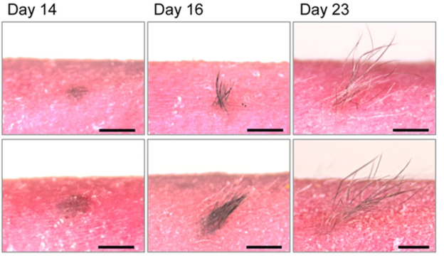 The transplanted skin mirrored normal hair growth cycles. Credit: Takagi et al