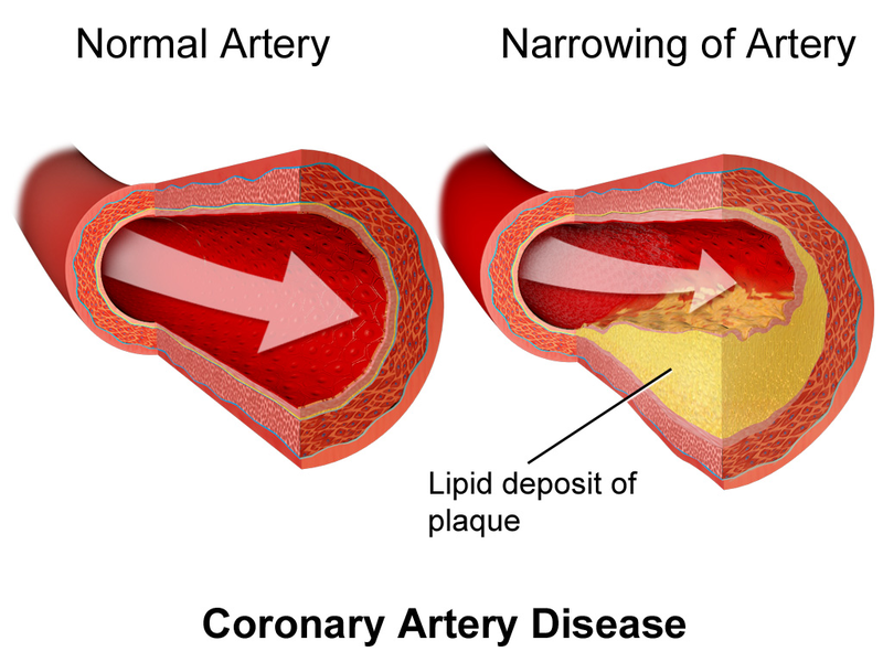 Also known as coronary artery disease, ischemic heart failure is caused by atherosclerosis and reduced blood flow to the heart