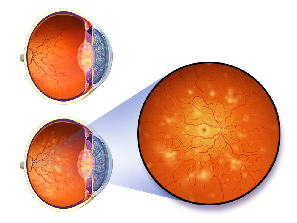 In some cases diabetes can damage blood vessels in the eye, causing retinopathy and blindness