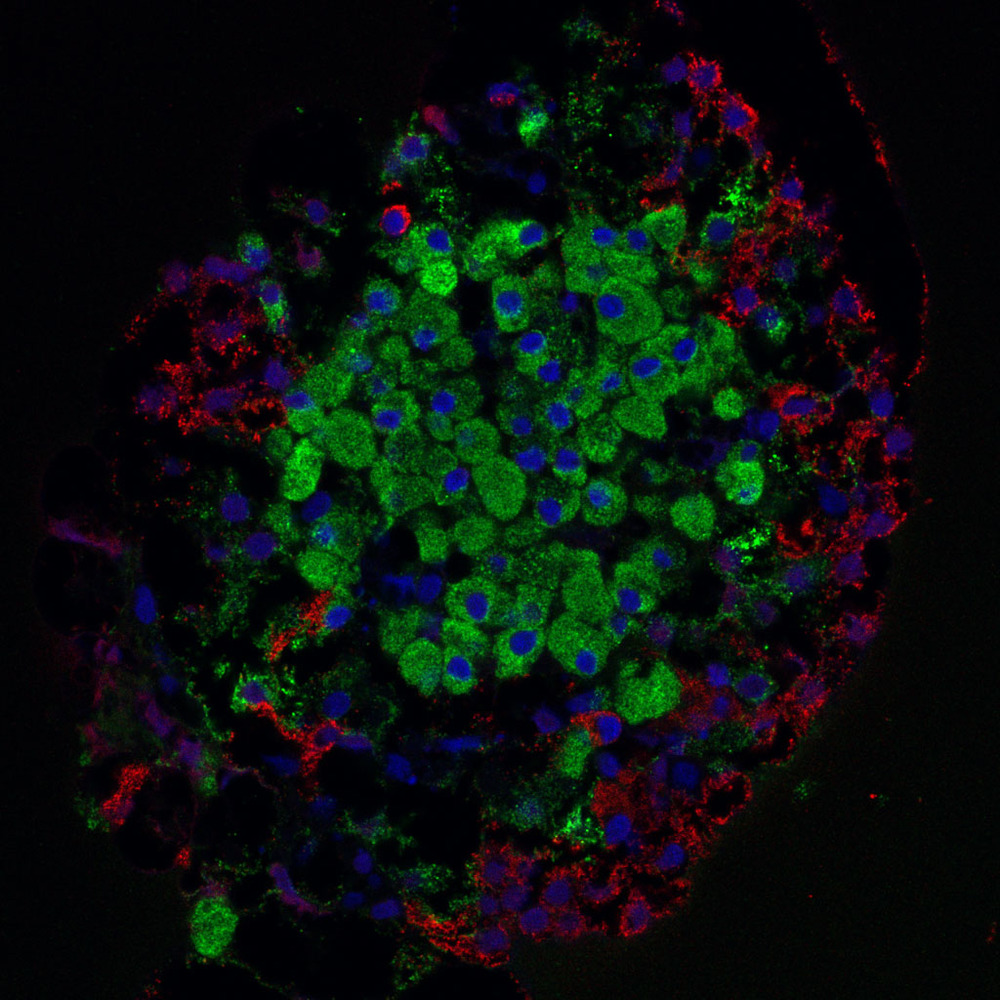 A pancreatic islet containing beta cells
