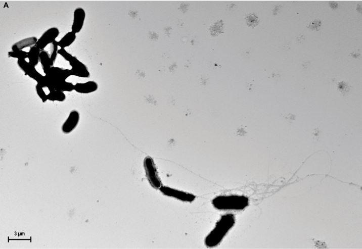 Amyloid fibrils capturing Candida albicans.Credit: D.K.V. Kumar et al. / Science Translational Medicine (2016)