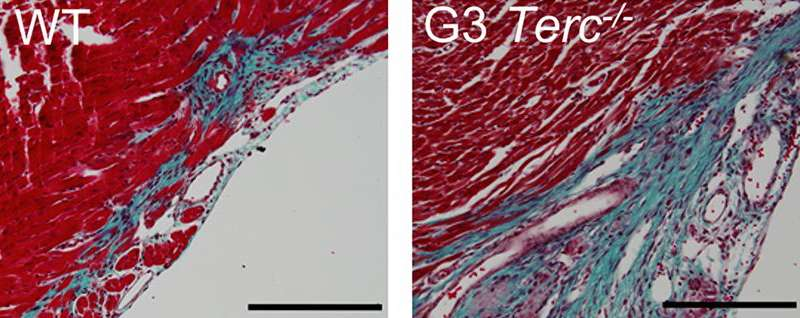 Telomerase deficient tissue (right) displays poor regenerative capacity just 1 day after birth, producing larger fibrotic deposition following damage (blue). Credit: Aix et al., 2016
