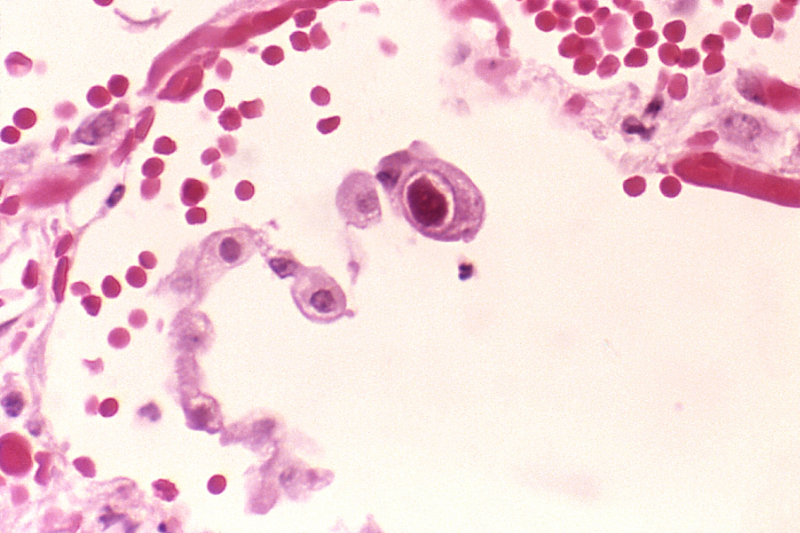 CMV infection of a lung pneumocyte