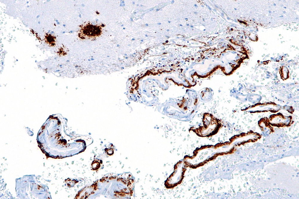 Image: amyloid-beta plaques (upper left of the image) in the brain