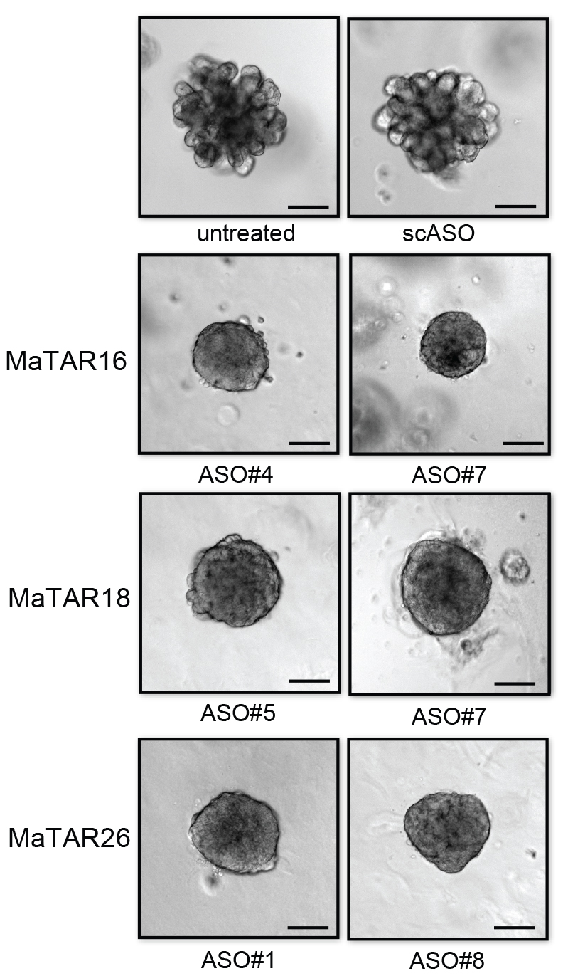 "Top: a luminal B breast cancer organoid before treatment (left), and after treatment with an antisense molecule (ASO) (right). In the next 3 rows different ASOs were applied to target 3 different long non-coding RNAs overexpressed in the breast cancer type. Overall, ASO#7, targeting MaTAR16, is most effective in shrinking a ""metastatic"" organoid while also changing its surface appearance from bulbous to smooth. Credit: Stephen Hearn, CSHL."