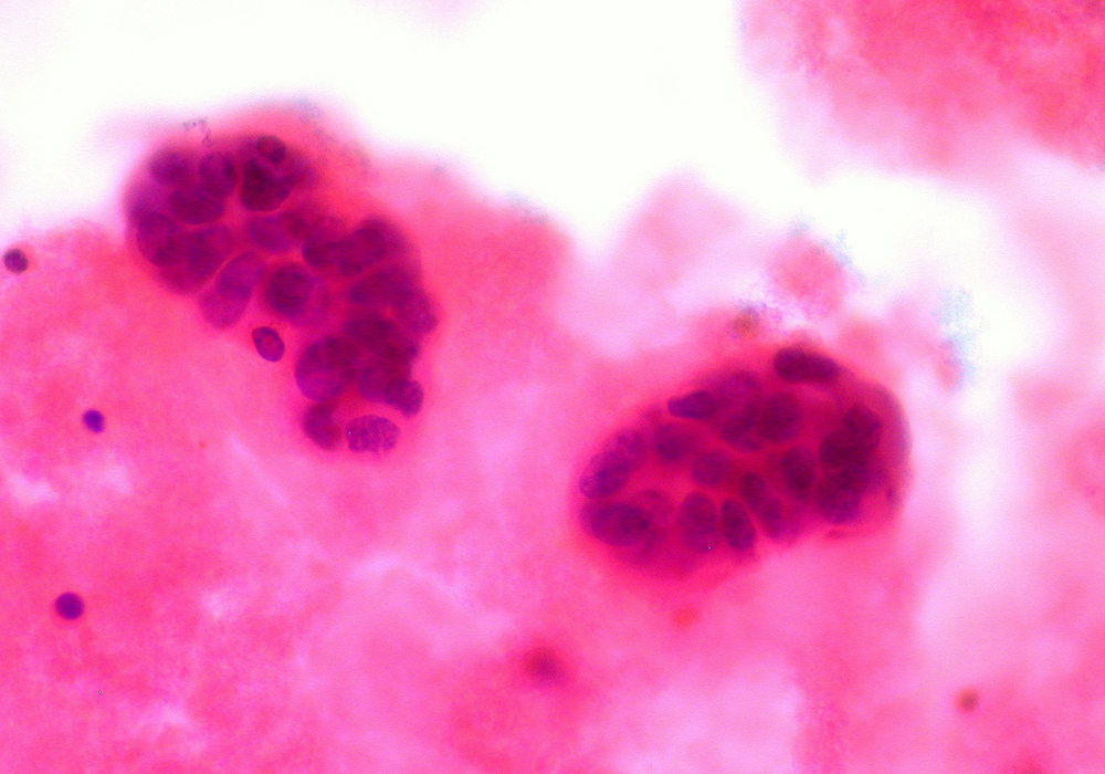 Credit: Euthman/Flickr