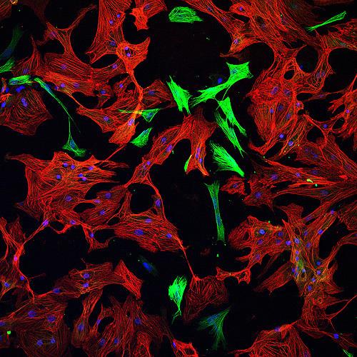 Cardiomyocyte cells. Credit: arboreus/Flickr