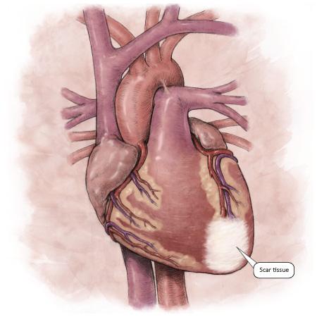 CVS Histology at Lecom Seton Hill - StudyBlue |Heart Scar Tissue