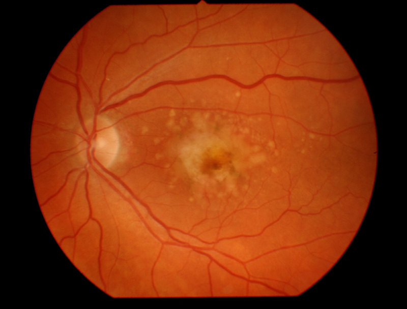 An example of macular degeneration