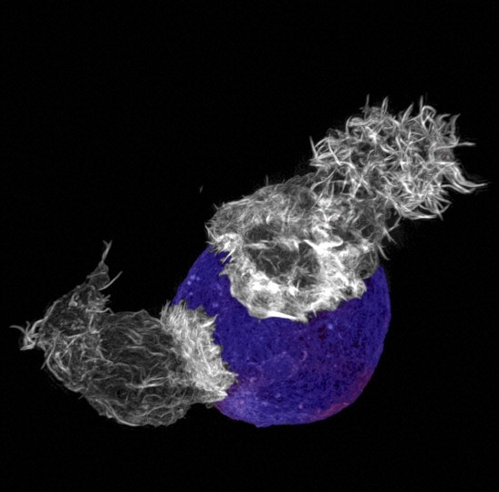 2 killer T-cells attacking. Credit: Wellcome Images