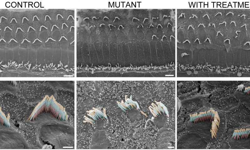 Normal mice sensory hair bundles (bottom left) and mutant mice (middle column). After treatment structure is restored (bottom right). Credit: Gwenaelle Géléoc and Artur Indzkykulian