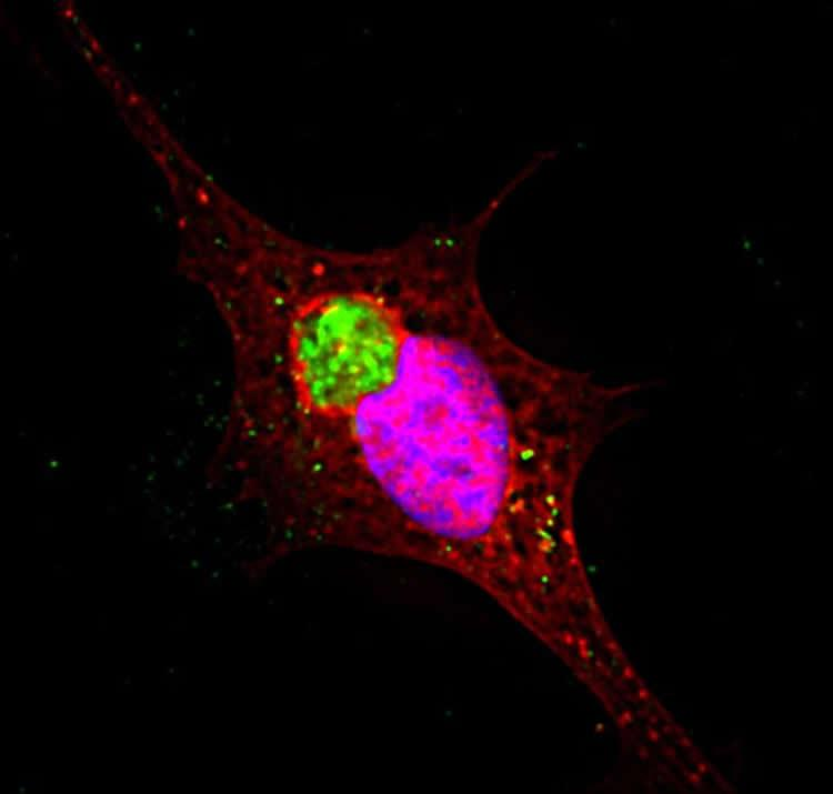 Ruptured vesicles containing alpha-synuclein protein (green) create large clumped structures resembling those seen in Parkinson's disease. Credit: Loyola University Chicago.
