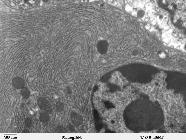 Transmission electron microscope image of a thin section cut through an area of mammalian lung tissue. Credit: Louise Howard/Wikimedia Commons