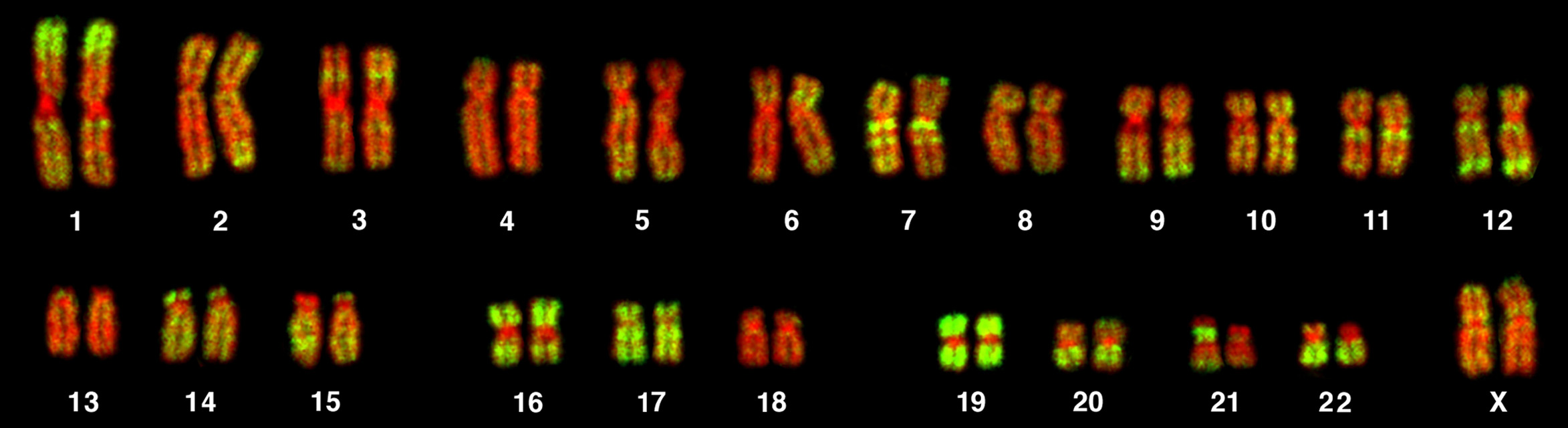 Most of the content of our chromosomes may simply function as a protective mechanisms against rogue mutations. Credit: Andreas Bolzer, Gregor Kreth, Irina Solovei, Daniela Koehler, Kaan Saracoglu, Christine Fauth, Stefan Müller, Roland Eils, Christoph Cremer, Michael R. Speicher, Thomas Cremer, via Wikimedia Commons
