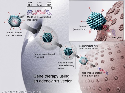 A new gene is injected into an adenovirus vector, which is used to introduce the modified DNA into a human cell. If the treatment is successful, the new gene will make a functional protein (Credit: U.S. National Library of Medicine