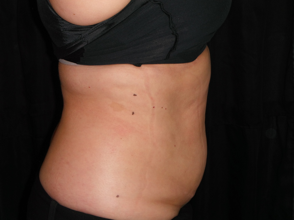 client after her 4th appointment! She purchased 6! Lost a total of 5 and 3/4 inches in her stomach area!