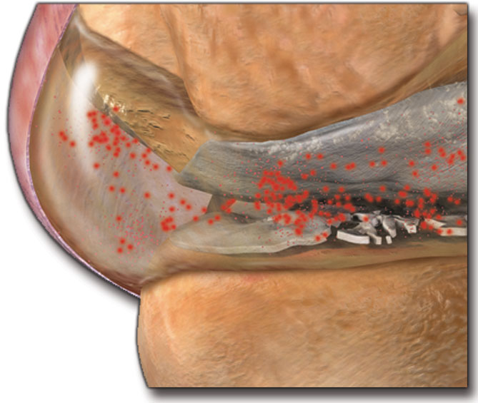 increased synovial fluid in joint.jpg