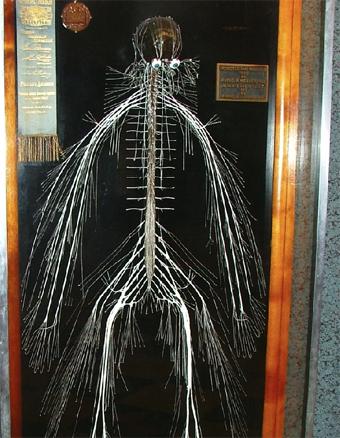 bundle of nerves PA.jpg