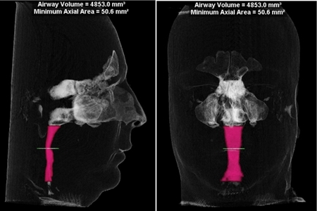A cone beam CT by iCAT - The airway volume is measured from the top of C2 to the bottom of C4. The volume as measured is 4.85cm3 – well below the anecdotal OSA threshold of 10cm3.The valve is the smallest cross-sectional area of the airway. As well, the valve (yellow line) is .5cm2, well below the anecdotal cross-section minimum of 1cm2.