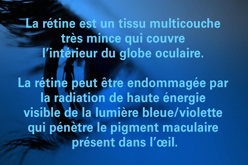 retinaFR_1.png