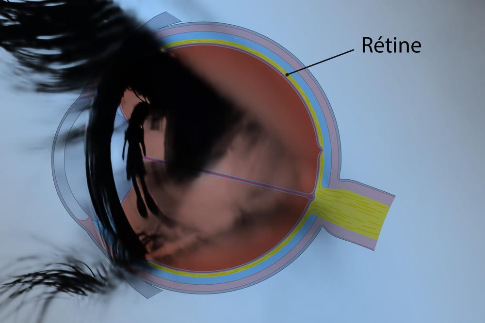 retinaFR_2_REV.png