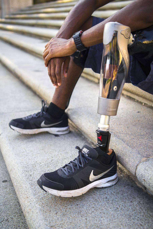 Wilson's prosthetic leg.