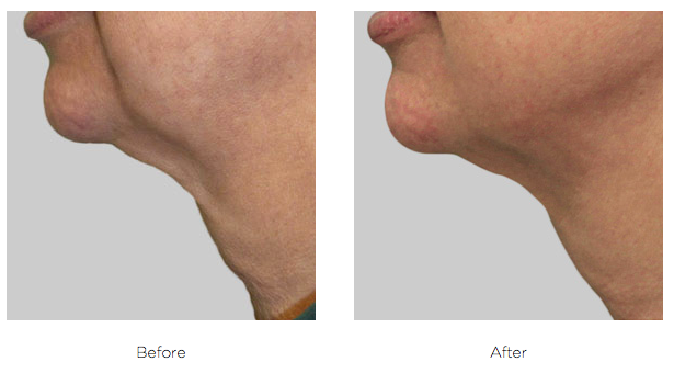 Do you hate your neck? Non-surgical skin tightening and fat reduction is possible through Exilis treatments at Nashville Cosmetic Surgery.