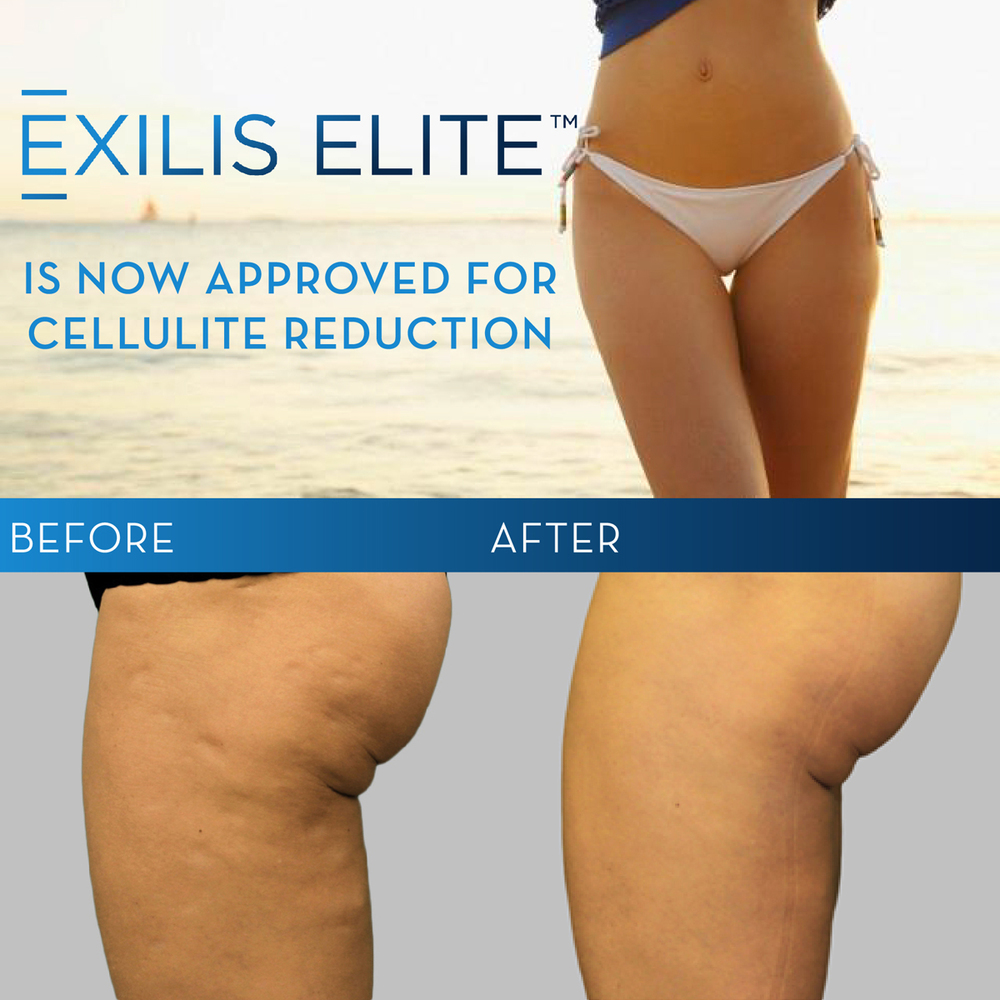Exilis Elite at Nashville Cosmetic Surgery: Procedure Granted FDA Clearance for Treatment and Appearance of Cellulite