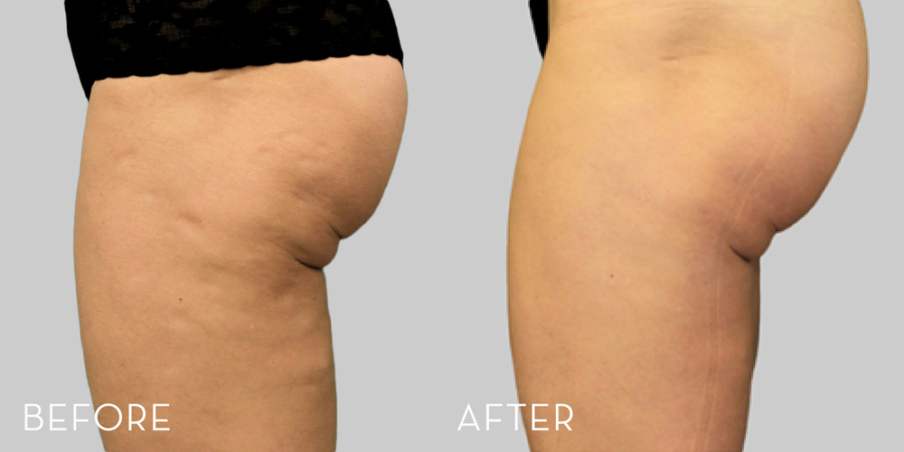 Before and After EXILIS ELITE treatment of thighs